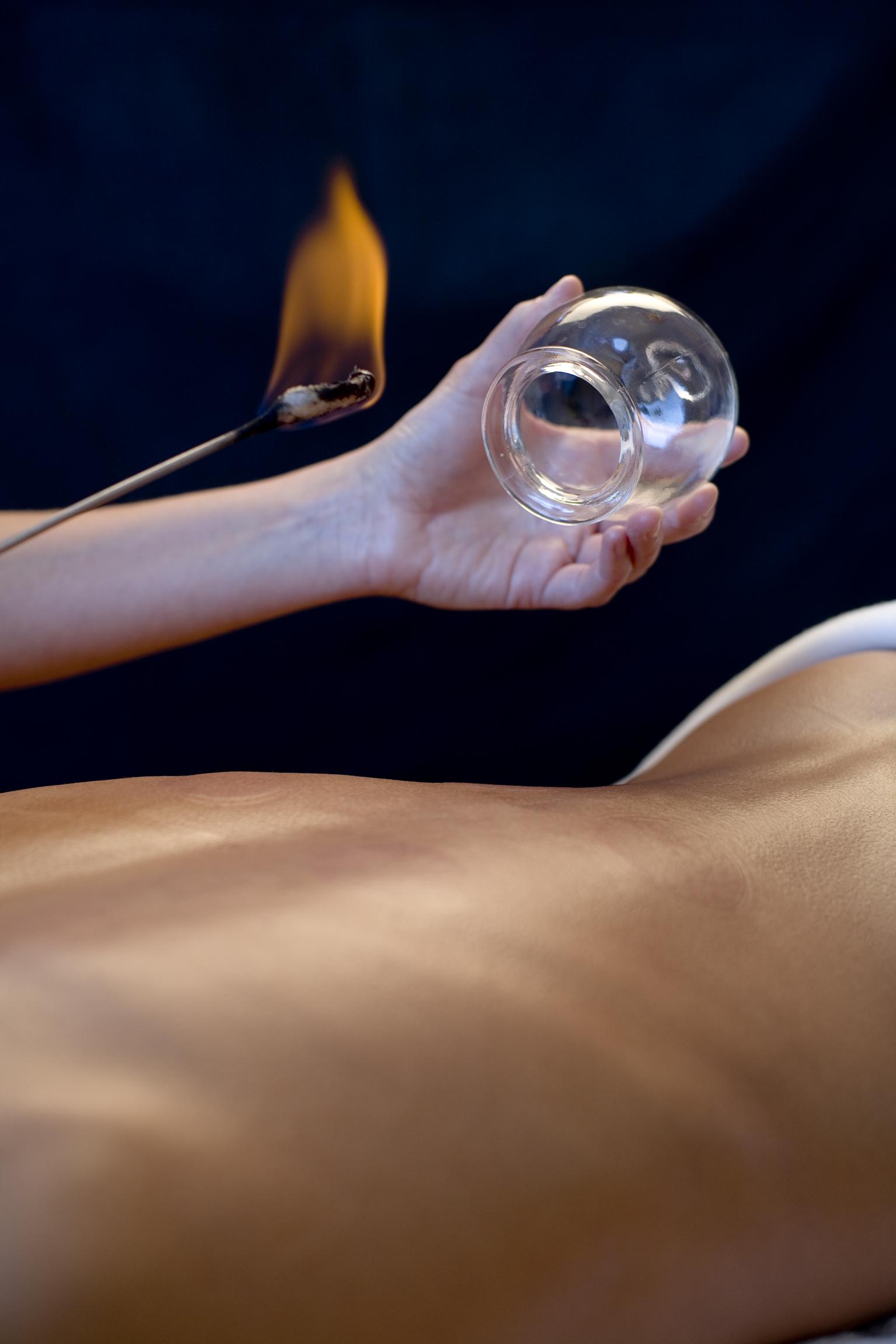 Akupunktur: Bewährt seit Jahrtausenden